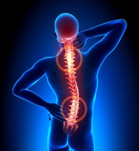 Stuburo disko išvaržos simptomai